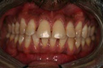 Tooth Whitening & Invisalign - Before And After Gallery | A Life of Smiles