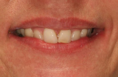 Cosmetic Dentistry – Before & After | A Life of Smiles