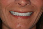 TMJ / Neuromuscular - Before & After Gallery   A Life of Smiles
