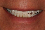 Tooth Whitening | Grand Rapids MI