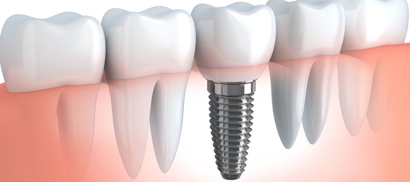 Grand Rapids MI Dental Implants | A Life of Smiles
