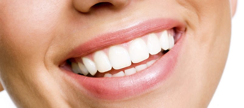 Grand Rapids Tooth Bonding – Cosmetic Dentists | A Life of Smiles