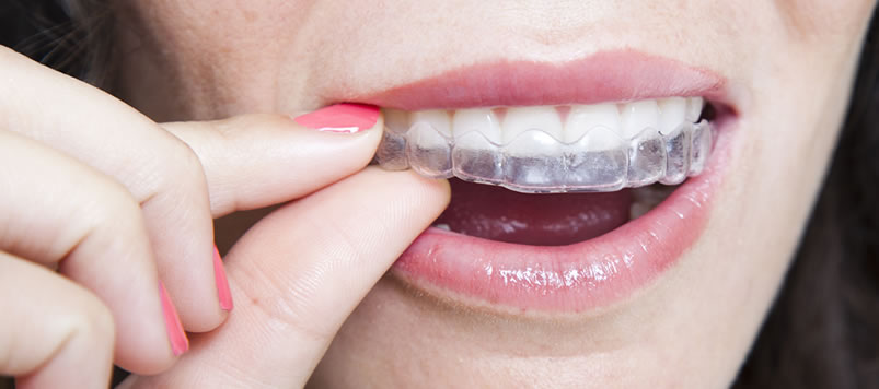Invisalign & Orthodontics Grand Rapids| A Life of Smiles