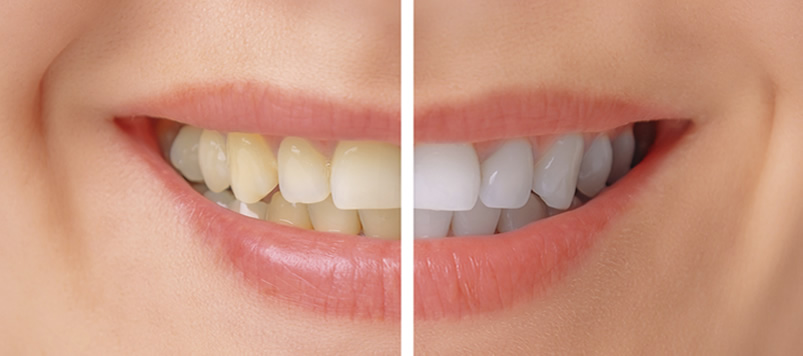 Grand Rapids Tooth Whitening | A Life of Smiles