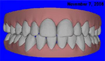 Invisalign & Orthodontics   A Life of Smiles