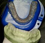 TMJ Treatments   A Life of Smiles