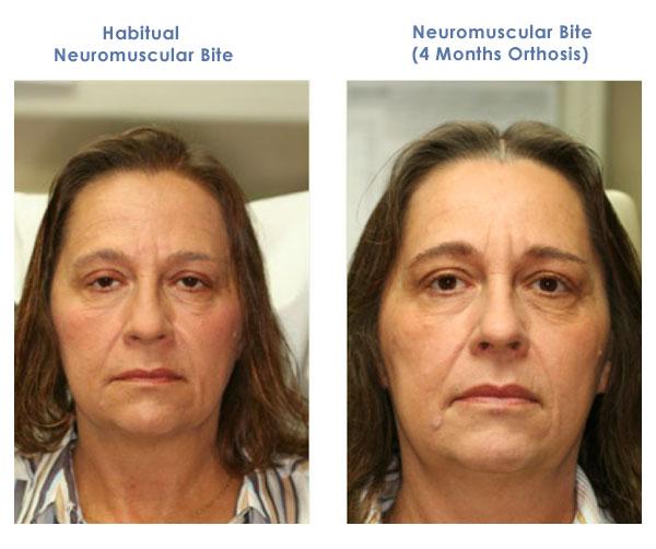 Tmj Tmd Treatment Grand Rapids Neuromuscular Dentistry Rockford Mi