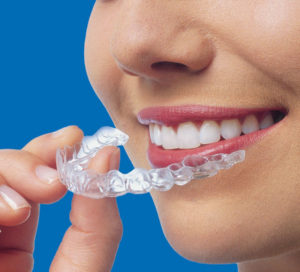 Invisalign Works When You Work It | A Life of Smiles | Grand Rapids, MI