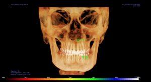 ICAT 3D Imaging | JVA Grand Rapids MI